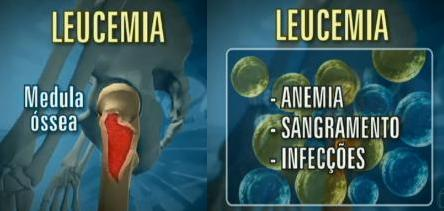 Leucemia4