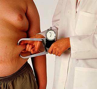 obesidade-grave